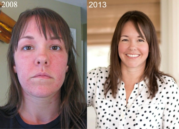 How I Reversed Hashimoto's Disease Naturally Before and After
