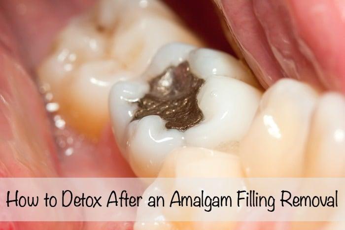 How to Detox After Amalgam Filling Removal