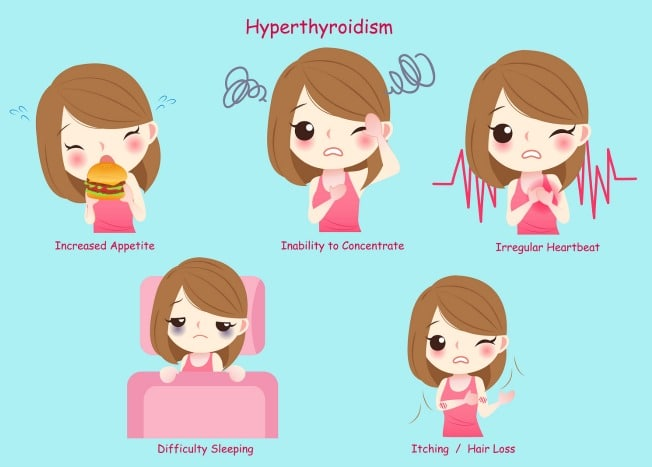 Hyperthyroidism - The Cause, Symptoms, Labs and First Steps to Take