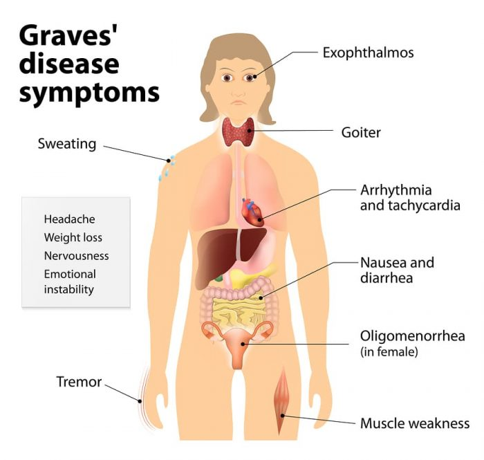 Graves' Disease: The Cause, Symptoms, Labs and First Steps to Take